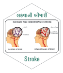 Stroke treatment At Vatiani Neuro Clinic
